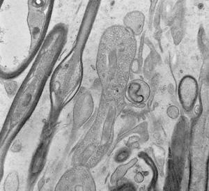 diatome-2.jpg